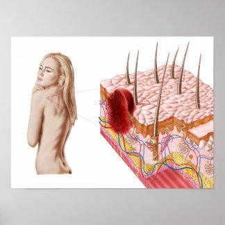 Ejemplo de un crecimiento anormal en la piel posters