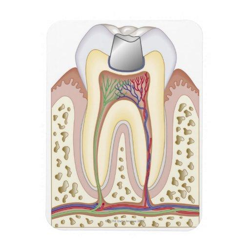 Ejemplo del relleno dental imán