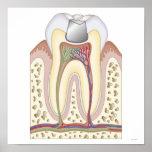Ejemplo del relleno dental impresiones