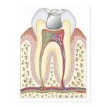 Ejemplo del relleno dental postal