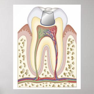 Ejemplo del relleno dental póster