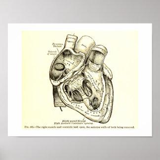 Ejemplo humano del corazón de la anatomía del póster