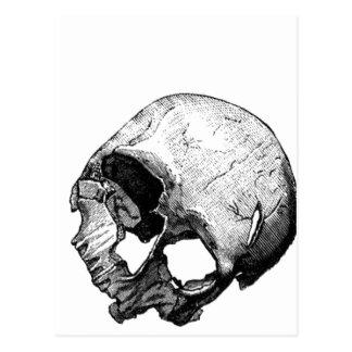 Ejemplo humano del vintage del cráneo tarjeta postal