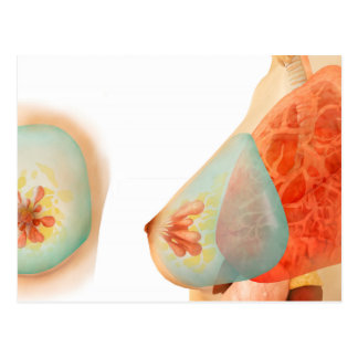Ejemplo médico del pecho femenino tarjetas postales