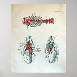 Ejemplo médico del pecho humano impresiones