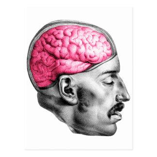 Ejemplo médico del vintage de los cerebros tarjeta postal