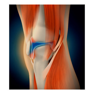 Ejemplo médico: Inflamación en rodilla Póster