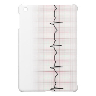 EKG heartbeat on graph paper, PhD (doctor) pulse iPad Mini Covers