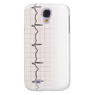 EKG heartbeat on graph paper, PhD (doctor) pulse Samsung S4 Case