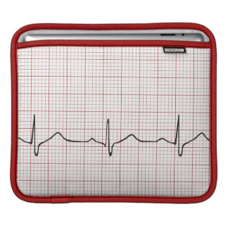 EKG heartbeat on graph paper, PhD (doctor) pulse Sleeve For iPads