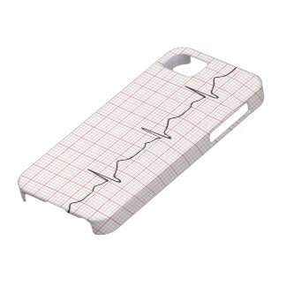 EKG heartbeat on graph paper, pulse beating iPhone 5 Cover