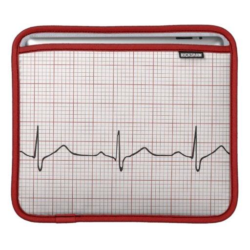 EKG heartbeat on graph paper, pulse beating iPad Sleeve