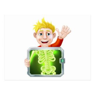 El agitar del hombre de la radiografía postal