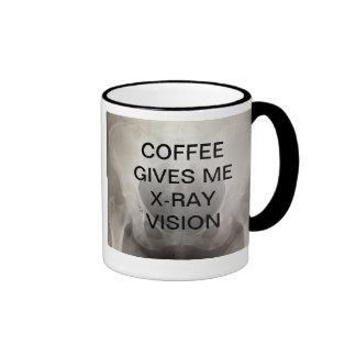 EL CAFÉ ME DA LA RADIOGRAFÍA VISION TAZA DE CAFÉ