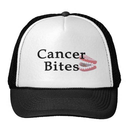 El cáncer muerde el gorra