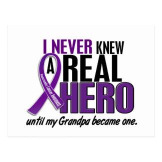 El cáncer pancreático NUNCA CONOCÍA a un abuelo de Postal