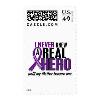 El cáncer pancreático NUNCA CONOCÍA a una madre Franqueo