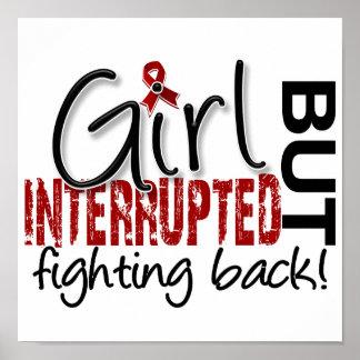 El chica interrumpió el mieloma múltiple 2 posters