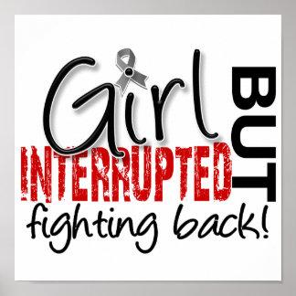 El chica interrumpió el tumor cerebral 2 posters