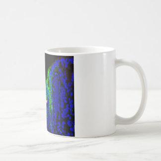 El esófago de Barrett Tazas De Café