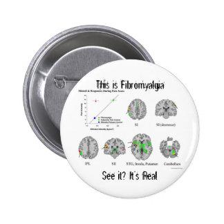 El Fibromyalgia es real. prueba del fMRI Pins