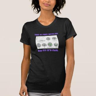 El Fibromyalgia es real. prueba del fMRI Camisetas