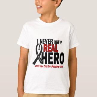 El melanoma NUNCA CONOCÍA a una hermana del HÉROE Playera