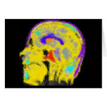 El MRI colorized de la marca Felicitación