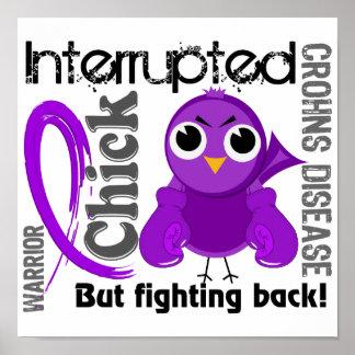 El polluelo interrumpió la enfermedad de 3 Crohnes Impresiones