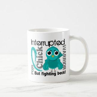 El polluelo interrumpió síndrome policístico del o tazas de café