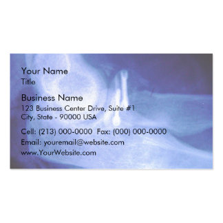 Elbow xray with screws business card
