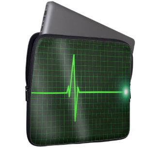 Electrocardiogram Waves Laptop Sleeve Computer Sleeve