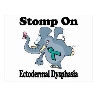 Elephant Stomp On Ectodermal Dysphasia Postcard