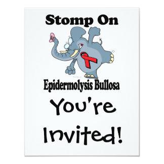 Elephant Stomp On Epidermolysis Bullosa Card