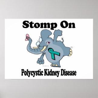 Elephant Stomp On Polycystic Kidney Disease Posters
