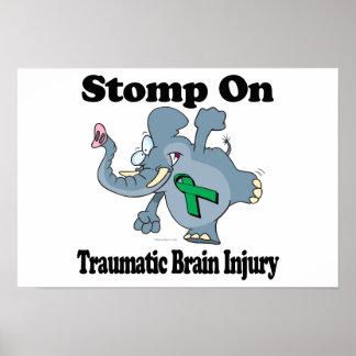 Elephant Stomp On Traumatic Brain Injury Posters