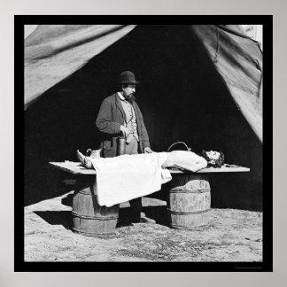 Embalming Surgeon at Work 1864 Poster