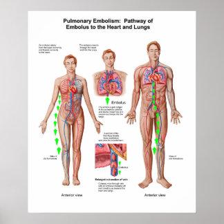 Embolia pulmonar, camino del émbolo póster