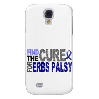 Encuentre la parálisis del Erb de la curación