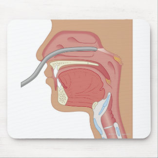 Endoscopy of the Nose Mouse Pad