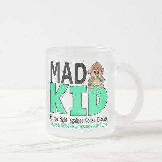 Enfermedad celiaca del niño enojado taza cristal mate