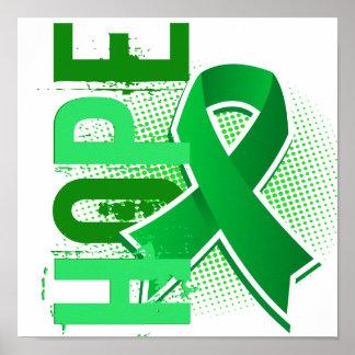 Enfermedad de riñón de la esperanza 2 impresiones