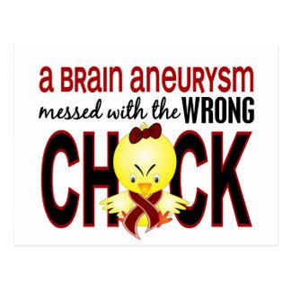 Ensuciado con Aneurysm incorrecto del cerebro del Postal