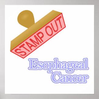 Esophageal Cancer Poster
