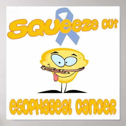 Esophageal Cancer Print
