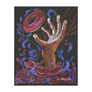 Esperanza - conciencia del dolor de la célula falc impresion de lienzo