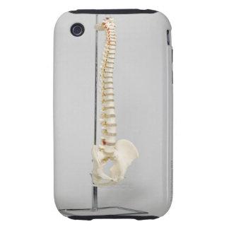 Esqueleto de la quiropráctica iPhone 3 tough funda