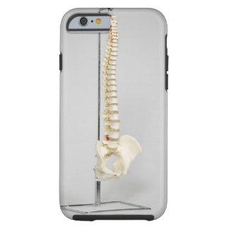 Esqueleto de la quiropráctica funda de iPhone 6 tough