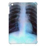 Esqueleto de la radiografía de Ribcage