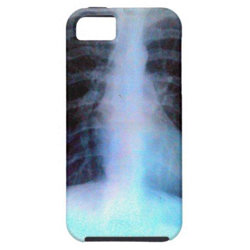 Esqueleto de la radiografía de Ribcage iPhone 5 Fundas